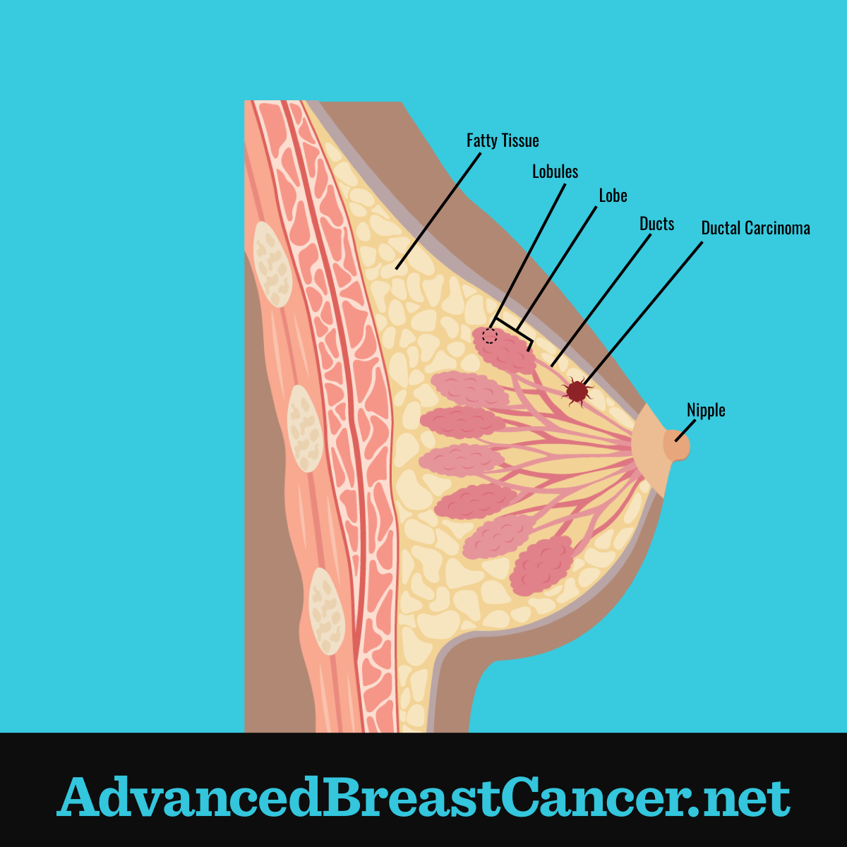 Ductal carcinoma shown in section of fatty tissue along a breast duct positioned between lobes and nipple.