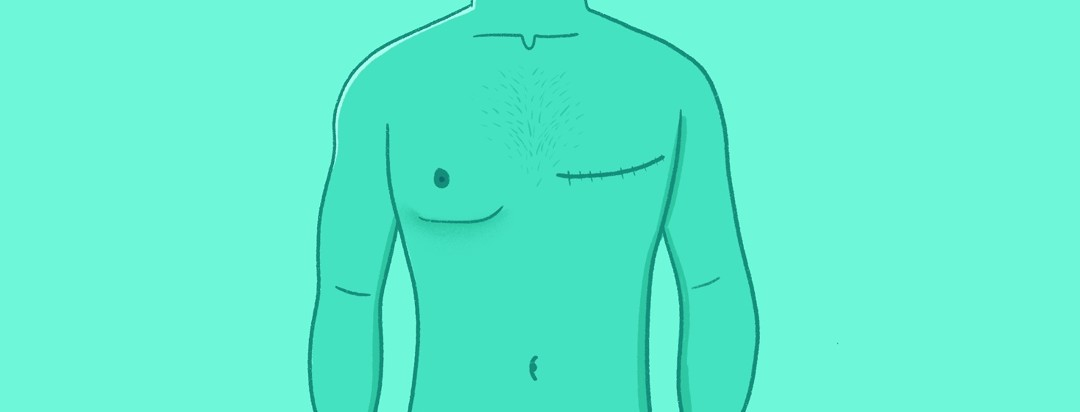 A male torso with a mastectomy scar
