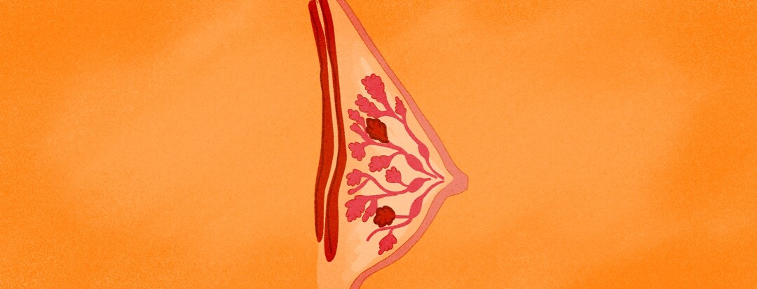 An interior view of breast tissue where some of the lobules are inflamed with tumors
