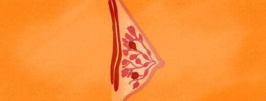 Understanding Invasive Lobular Carcinoma image
